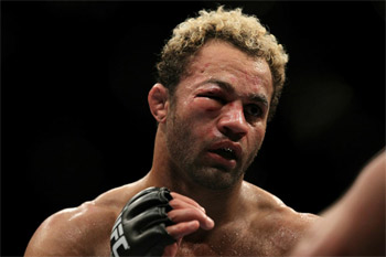 Nasty eye injury at UFC 124