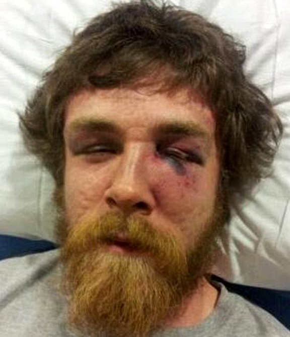 senator's son beat down