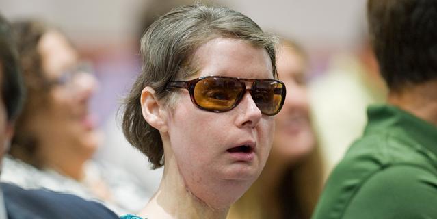 Charla Nash after reconstructive surgery