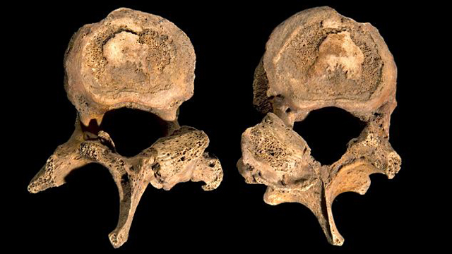 King Richard III had scoliosis, remains found under Leicester car park