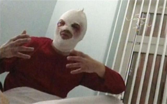 Bolshoi's Sergei Filin in hospital after attack