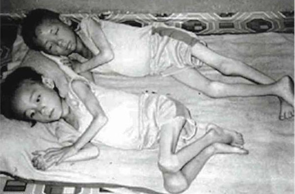 North-Korean-Famine
