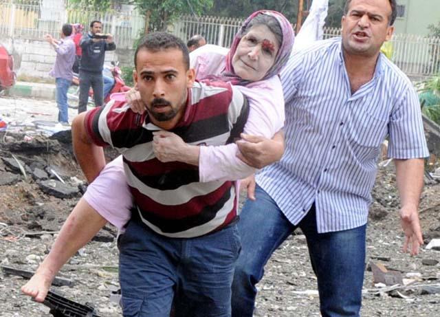 Syria Turkey War Injured Bomb