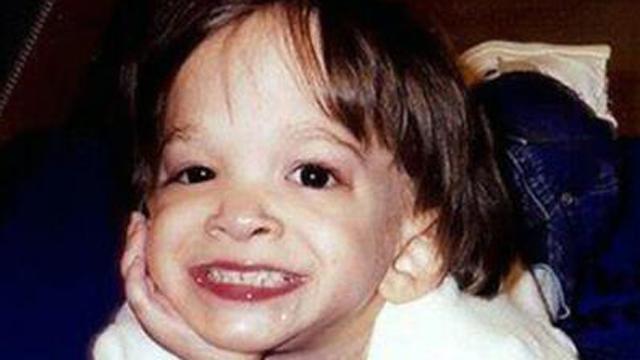 Brooke Greenberg Dead Brooke Greenberg Dies Syndrome X toddler dead.