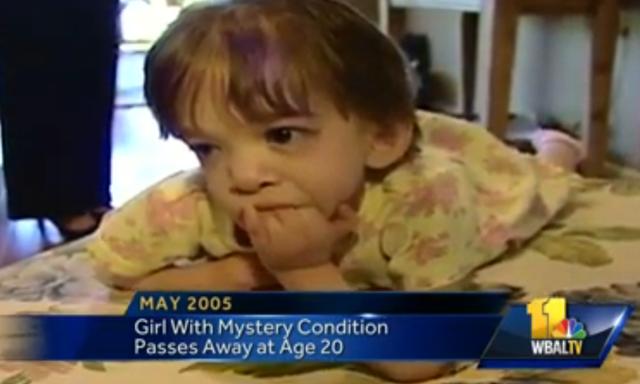 rooke Greenberg Dead Brooke Greenberg Dies Syndrome X toddler dead.