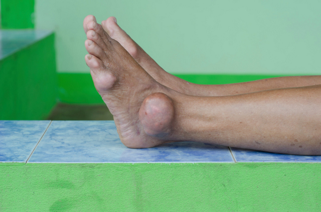 about gout diet