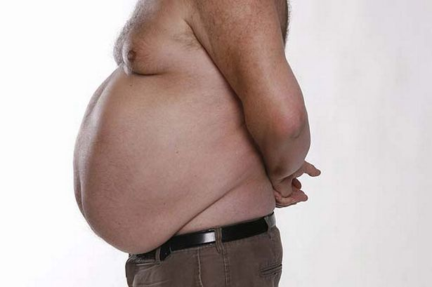 obese-male-torso