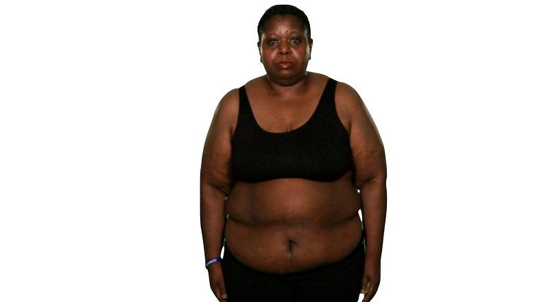 Mitzi Extreme Weight Loss, Mitzi White, Mitzi White Before, Mitzi White After, Extreme Weight Loss Cast 2015, Mitzi White Photos