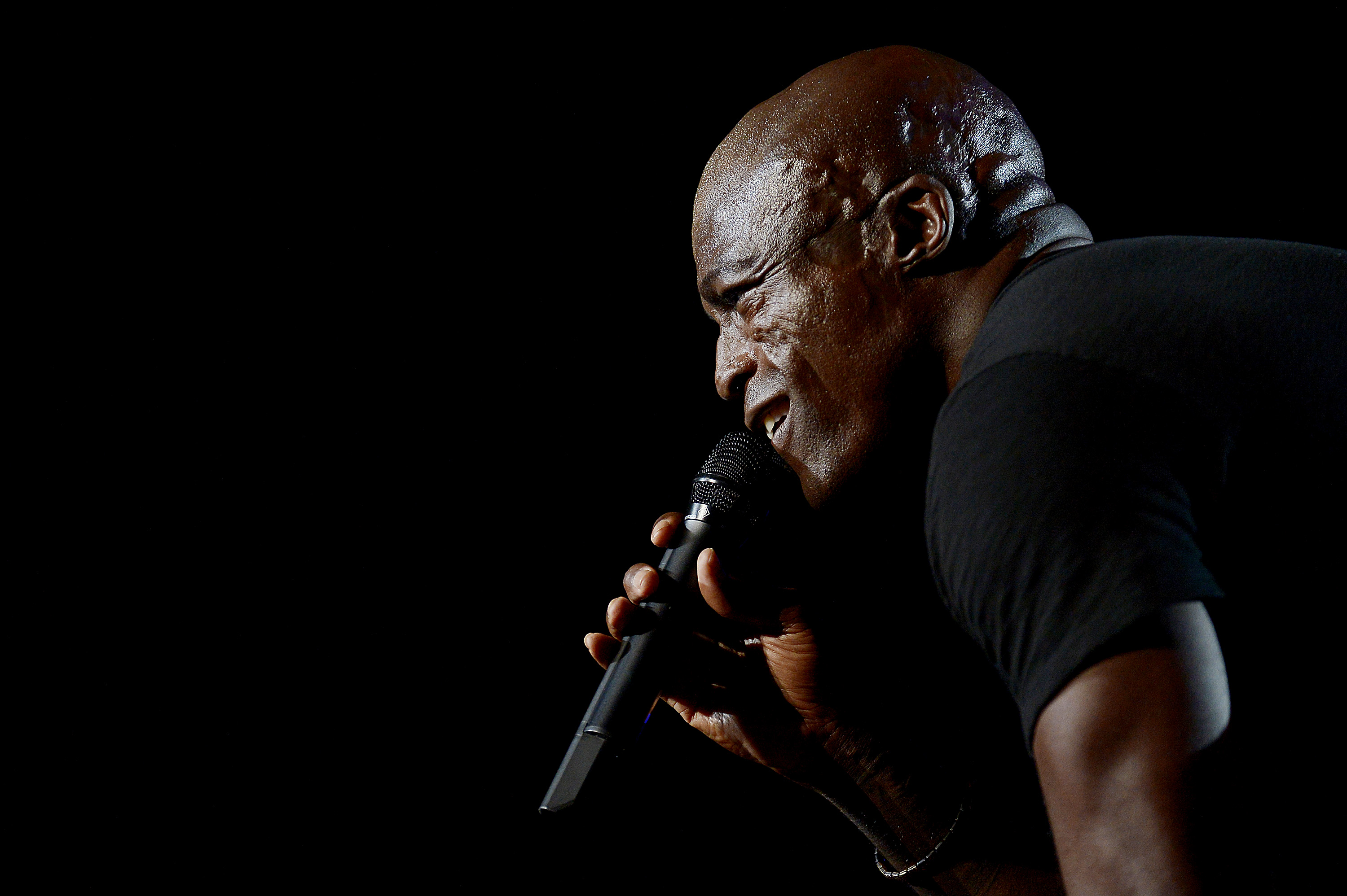 Musician Seal Face Scars, Seal Face Scarring, Discoid Lupus Erythematosus, What Happened to Seal's Face, Seal Face Scars Caused By, Was Seal Burned