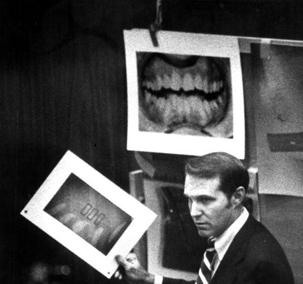 Ted Bundy trial dental evidence