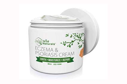 aloe vera eczema cream