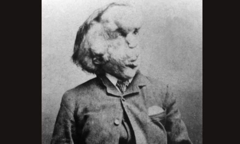 Joseph Merrick