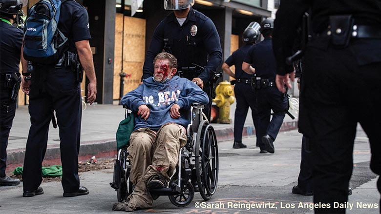 homeless man shot
