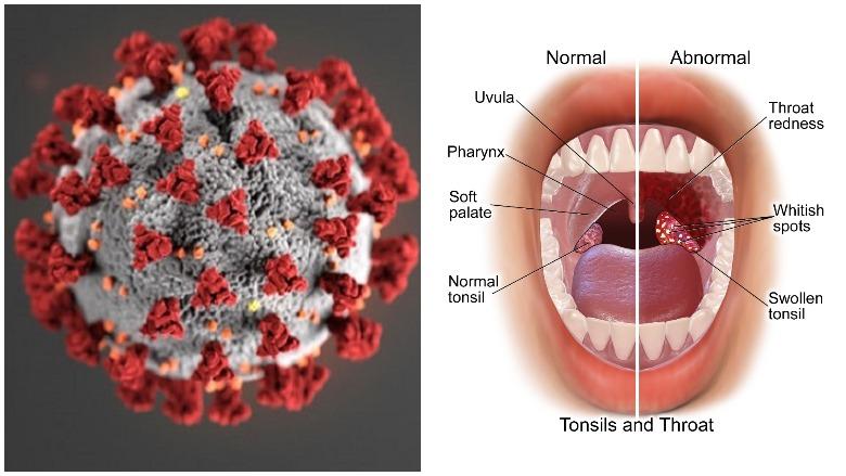 covid strep, covid sore throat, covid strep vs sore throat, covid throat problems