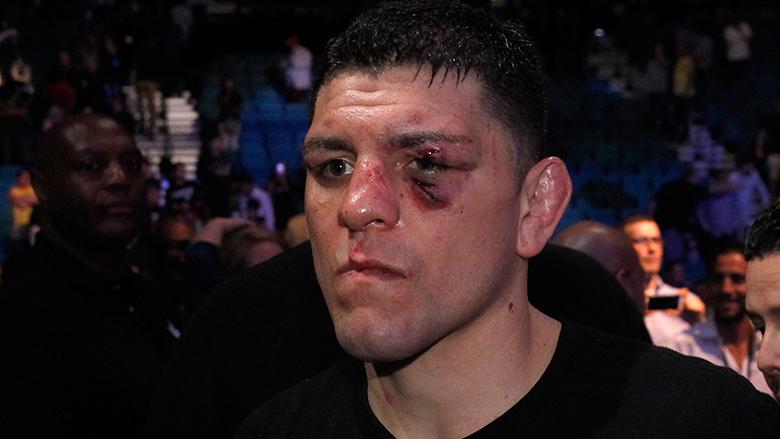Former UFC Fighter Nick Diaz
