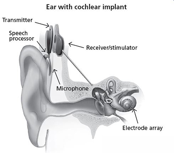 A diagram of a cochlear implant.