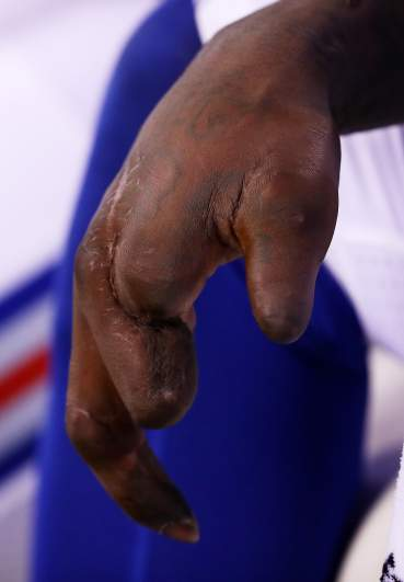 Jason Pierre-Paul's mangled hand.