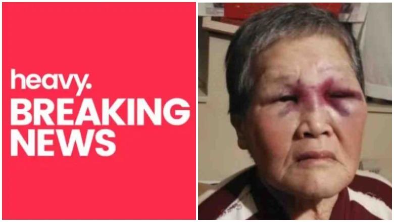 elderly asian woman beat attacker